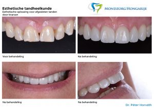 Mondzorg Hongarije - esthetische tandheelkunde