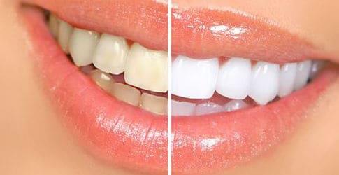 stralend witte lach - whitening