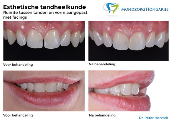 Esthetische Tandheelkunde - Mondzorg Hongarije