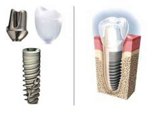 10 redenen om te kiezen voor implantaten in Hongarije
